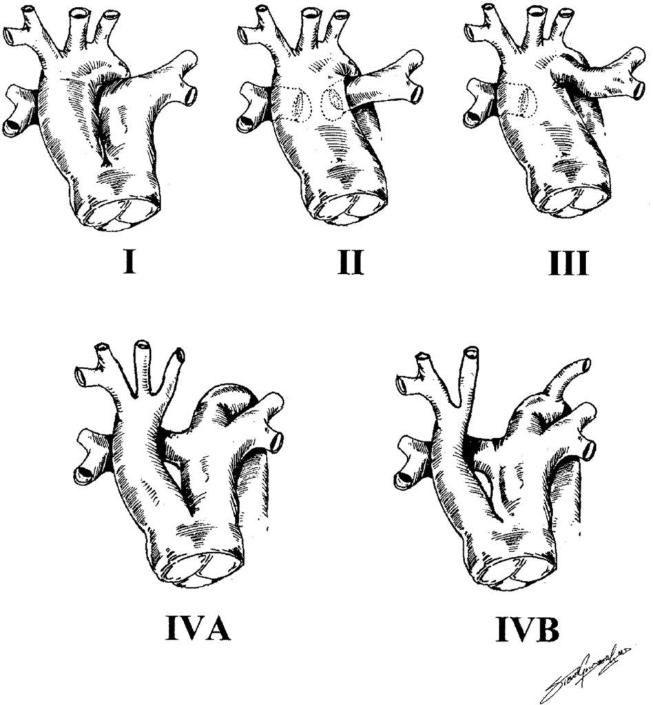 truncus_arteriosus_types